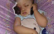 Miris, Balita 2,5 Tahun Menderita Kanker Mata Butuh Perhatian