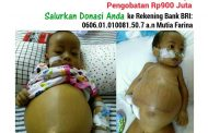 Obati Pembengkakan Hati, Bayi Ini Butuh Tambahan Biaya Rp900 Juta