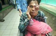 Penderita Kanker Mata Ini Butuh Bantuan