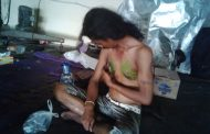Kanker Payu Dara Juga Menyerang Lelaki Ini